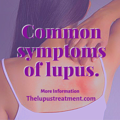 Treatment For Lupus - Know More - Thelupustreatment